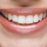 Maximize Your Smile