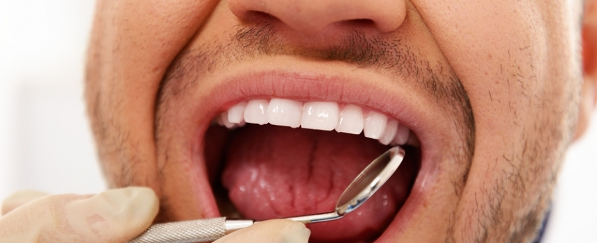 Most Common Reasons for Tooth Extraction