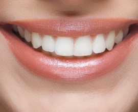 How Fluoride Helps Maximize Your Smile Over Time